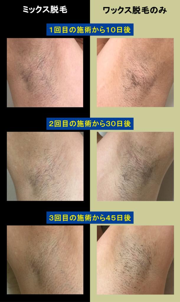 ミックス脱毛とワックス脱毛の発毛比較画像
